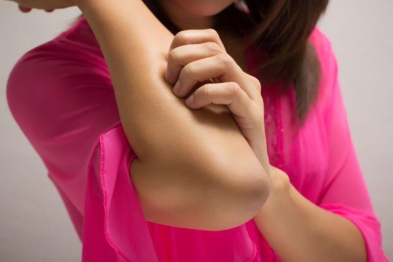 肘の黒ずみ解消