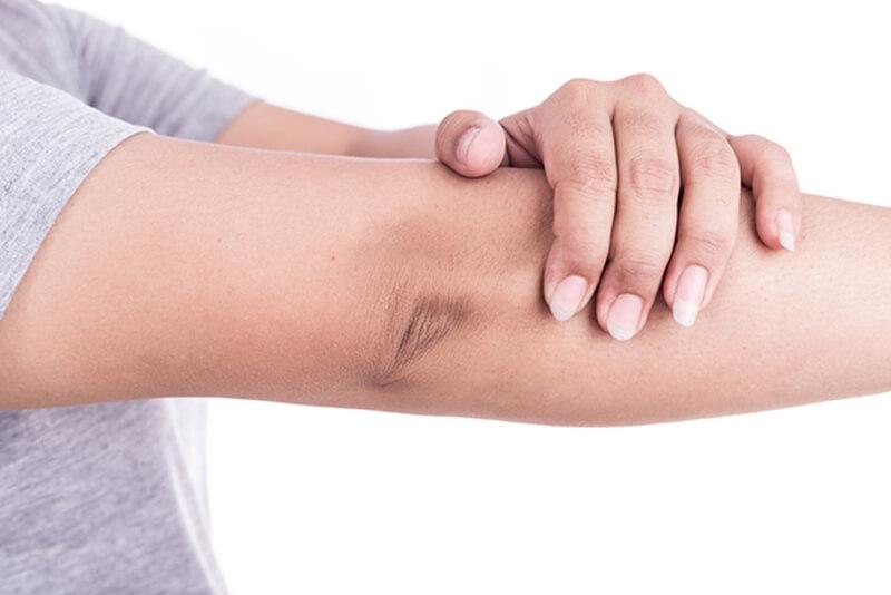 肘の黒ずみ皮膚科