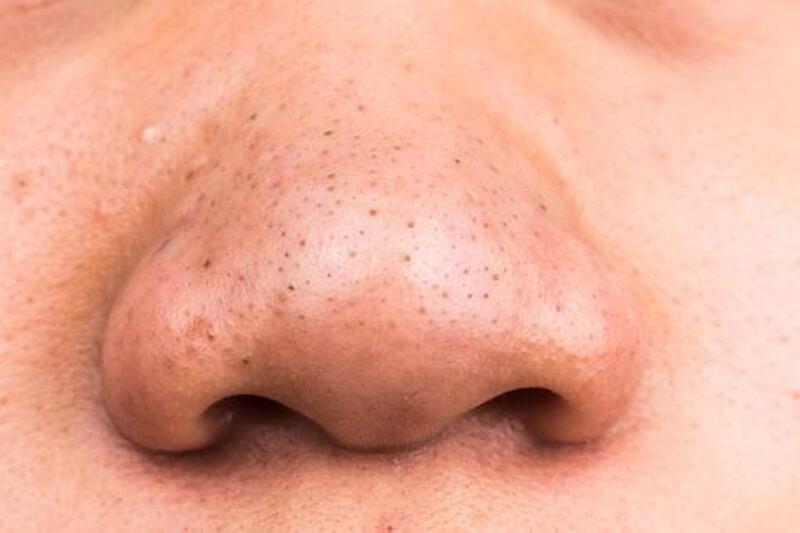 鼻の毛穴の黒ずみを治す