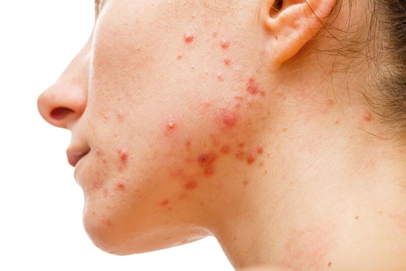 化膿ニキビは皮膚科