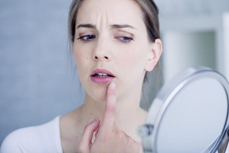 口の周りニキビの意味やジンクス