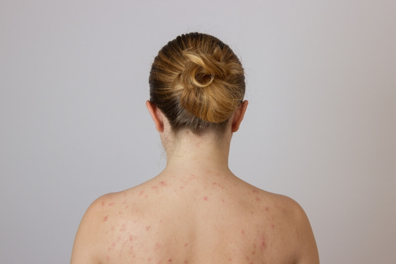 背中が汚い女子必見!背中ニキビの原因と治し方8つの方法