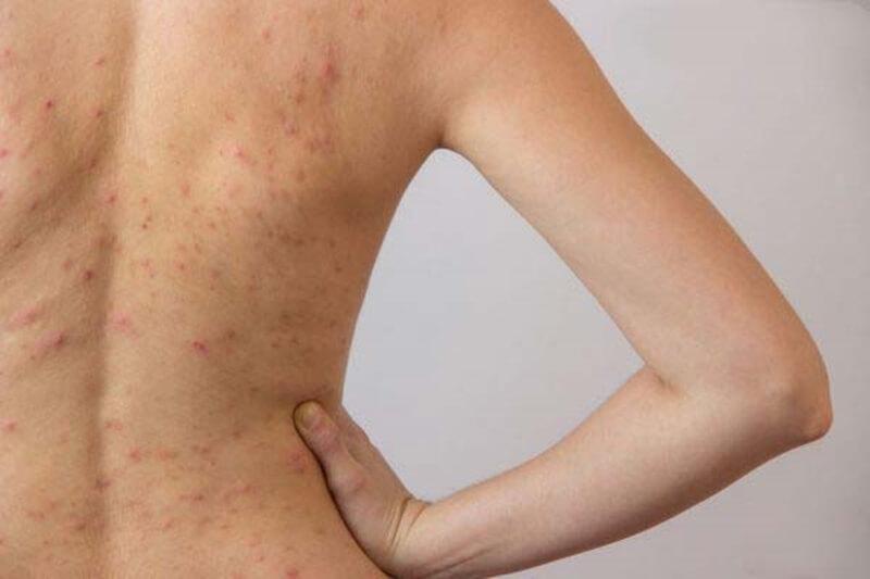 背中ニキビは皮膚科の薬で治療