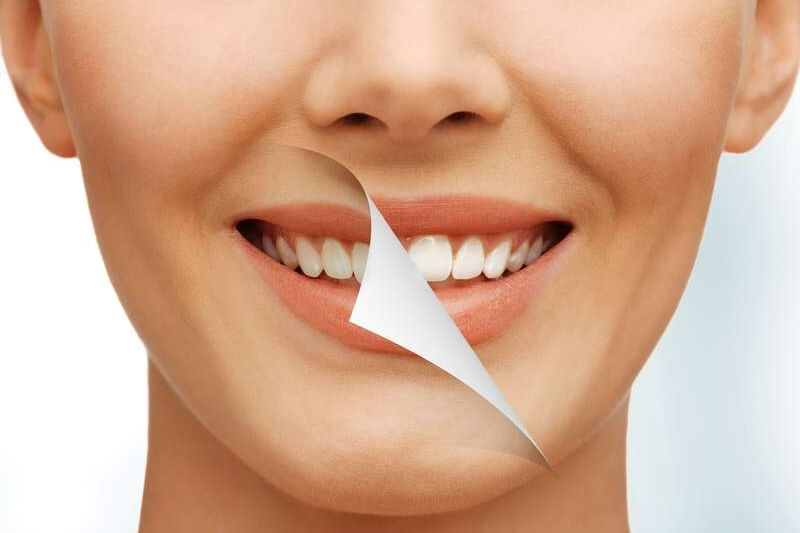 歯の黄ばみを落とす対策