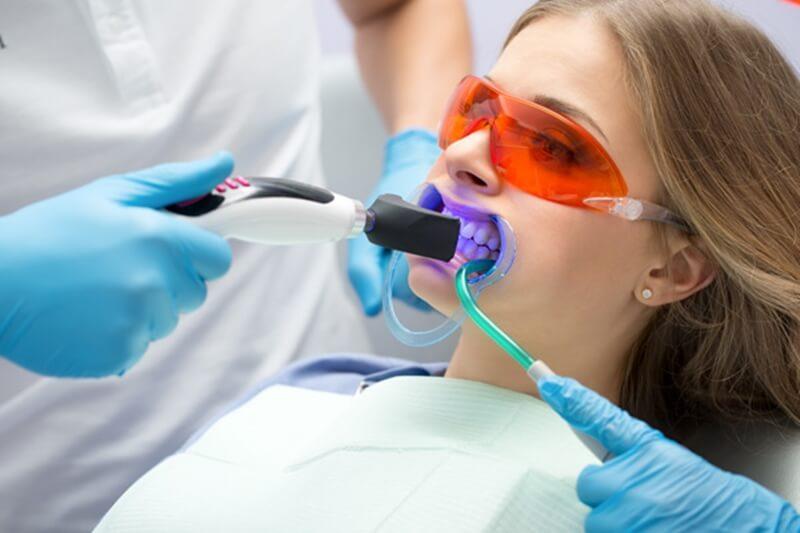 歯医者で歯を白くする